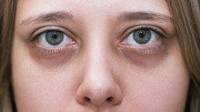 Cropped Shot Of A Young Female Face. Green Eyes With Dark Circles Under The Eyes And With Red Capillaries. Bruises Under The Eyes Are Caused By Fatigue, Nervousness, Lack Of Sleep, Insomnia And Stress