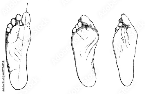 Foto Healthy (lefts) and diseased foot (rights)