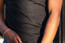 Crop Unrecognizable Person In Black Top With Arm Covered With Long Scars Standing In Sunlight