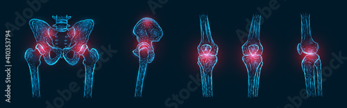Obraz Polygonal vector illustration of pain or inflammation of the bones in the pelvis, hip joint, and knee joints isolated. Joint pain concept - fototapety do salonu