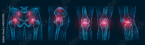Obraz Polygonal vector illustration of pain or inflammation of the bones in the pelvis, hip joint, and knee joints isolated on a dark blue background. Orthopedic diseases medical template. - fototapety do salonu