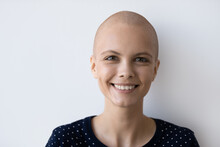 Crop Close Up Portrait Of Smiling Hairless Millennial Caucasian Woman With Oncology Feel Optimistic. Happy Young Bald Female Cancer Patient Pleasured With Good Results. Remission, Recovery Concept.