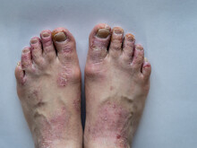 Closeup Of The Legs Of A Woman Suffering From Chronic Psoriasis On A White Background. Closeup Of Rash And Scaling On The Patient's Skin. Dermatological Problems. Dry Skin. Isolated.