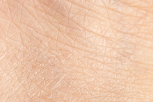 Very Dry Skin With Evident Exfoliation, Extreme Close Up Of Dehydrated Human Skin