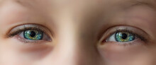 The Eyes Of A Child Are Very Close Up.