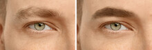Collage With Photos Of Man Before And After Eyebrow Modeling, Closeup. Banner Design