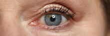 Blue Eye Of Elderly Woman Look Straight. Safe Laser Vision Correction. Surgery To Restore Vision. Modern Technologies To Improve Vision Concept.