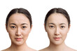 the concept of skin care before, after. young asian woman with bad skin with wrinkles and acne and after with perfect skin. comparison of the result