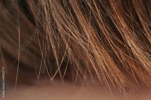 Loss hair theme © PixieMe