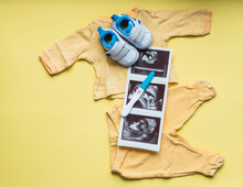 Ultrasound, Pregnancy Test And Baby Things On Yellow Background Conceptual Of Pregnancy