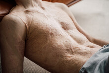 Man With A Large Scar After Burn On The Body Laying At The Floor And Relaxing