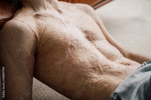 Canvas Print Man with a large scar after burn on the body laying at the floor and relaxing