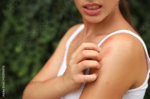 Woman scratching shoulder with insect bite outdoors, closeup Tapéta, Fotótapéta