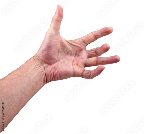 Hand of an man with Dupuytren contracture disease Fotobehang