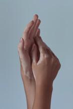 Hands With Vitiligo