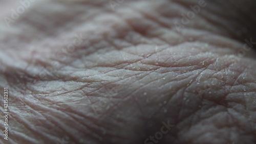 Fototapeta Close Up Of Senior's Hands With Alzheimer Disease obraz