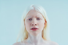 Beauty Image Of An Albino Girl Posing In Studio Wearing Lingerie. Concept About Body Positivity, Diversity, And Fashion