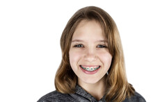 Young Teen Girl With Braces On Her Teeth Isolated On A White Background, The Girl Is Happy Because She Will Correct A Bad Bite And Her Teeth Will Be Aligned