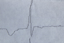 Cardiogram On Paper As Background Macro Photo