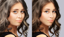Aging. Mature Woman-young Woman.Face With Skin Problem.Showing Photos Before And After.