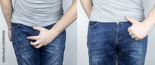 Fotografie, Obraz Before and after pain in the bladder