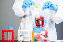A Woman Researcher Is Holding A Clear Plastic Bag With Biohazard Logo Printed On. The Bag Contains, Potentially Dangerous Biological Specimens. Scientists Discard These Waste In These Labelled Bags.