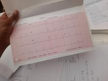 Heart Patient Holding ECG Or EKG Report In Hand