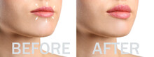 Young Woman Before And After Lips Enhancement, Closeup