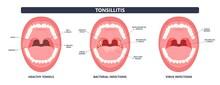 Tonsil Stones Crypts Viral Virus Gland Strep Throat Sore Enlarged Lymph Nodes Neck Pain Swollen Pus White Mouth Bacteria Herpes Simplex HSV Cold Fever Epstein Barr Fetid Bad Odor Oral Laser Aureus