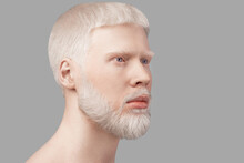 Abnormal Deviations Concept. Albino Man With Pale Skin And White Hair Looking Aside Over Grey Studio Background