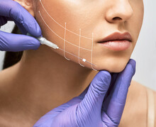 Facial Lifting Thread. Thread Facelift With Arrows On Face For Woman's Skin, Procedure Facial Contouring Using Mesothreads