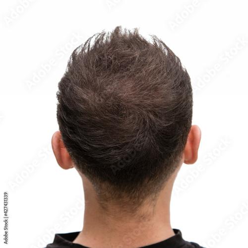 Halbglatze eines Mannes mit Haarausfallvon hinten nach einer Haarbehandlung #427431339