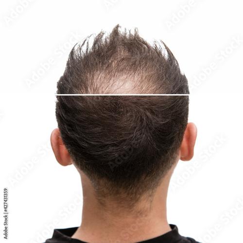 Vorher Nachher - Halbglatze eines Mannes mit Haarausfallvon hinten #427431359