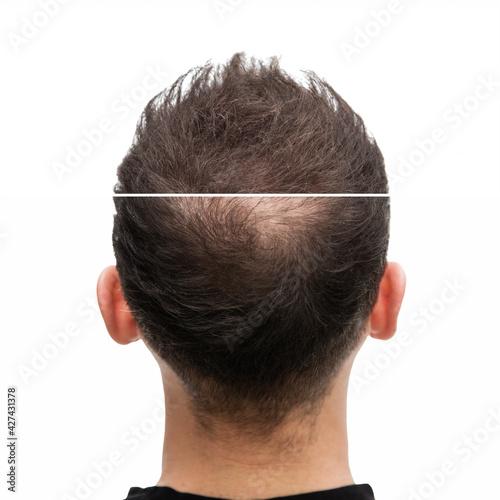 Vorher Nachher - Halbglatze eines Mannes mit Haarausfallvon hinten #427431378