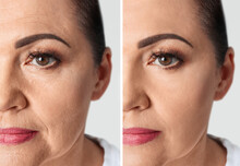 Collage With Photos Of Mature Woman Before And After Biorevitalization Procedure, Closeup