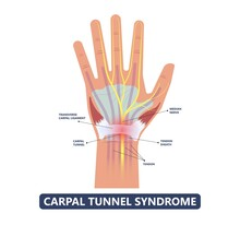 Carpal Tunnel Syndrome Pain Hand Arm Wrist Splint Surgery Bone Flexor Fingers Thumb Muscle Brace Index Middle Ring Work Limb Palm Mouse Keyboard