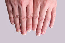 Onychomycosis Or Fungal Nail Infection On Damaged Nails After Gel Polish, Onychosis. Longitudinal Ridging Nails With Psoriasis, Nail Diseases. Health And Beauty Problem