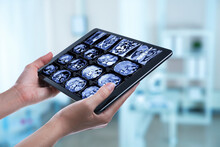 Doctor Examining X-ray Images On Tablet Indoors, Closeup