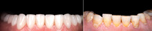 Perfect Smile Before And After Veneers Bleach Of Zircon Arch Ceramic Prothesis Implants Crowns. Dental Restoration Treatment Clinic Patient . Adult Old Woman Surgery Procedure Whitening Dentistry