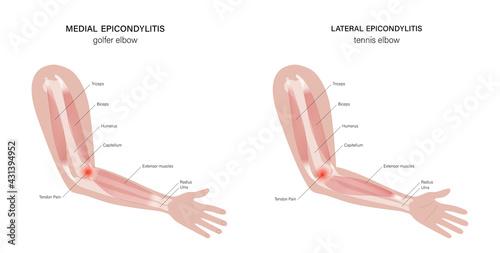 Obraz na plátně Lateral medial epicondylitis
