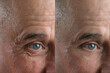 Leinwandbild Motiv Before and after cosmetic operation. close-up of eyes and forehead of old man, senior with wrinkles on his face in two versions, wrinkles on face, overhang, concept of cosmetic anti-aging procedures,