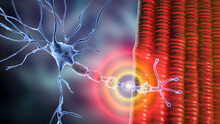 Demyelination Of A Neuron, The Damage Of The Neuron Myelin Sheath Seen In Demyelinating Diseases