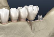 Cleavage Of The Alveolar Ridge : Implantation. Dental Surgery, 3D Illustration
