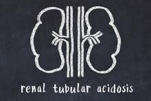 Chalk Drawing Of Human Kidneys And Medical Term Renal Tubular Acidosis. Concept Of Learning Medicine