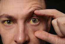 Man Checking His Health Condition On Black Background, Closeup. Yellow Eyes As Symptom Of Problems With Liver