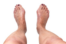 Hallux Valgus, Bunion On Elderly Woman's Feet Isolated On White Background. Painful Toe Joint Deformity With Misalignment Of Toes. Concept Of Medical Treatment Or Cosmetology Help. Closeup, Top View.
