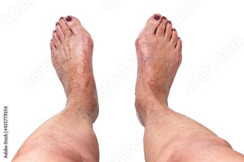 Fototapeta Hallux valgus, bunion on elderly woman's feet isolated on white background