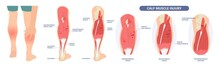 Calf Pain Leg Back Muscle Blood Vessels Nerve Acute Sport Damage Arterial Trauma Tennis Soccer Tear Cramp Spasm Charley Horses Medial Fiber Bruising Run Walk Tendon Clot Deep Vein Pull Torn Up Sprain