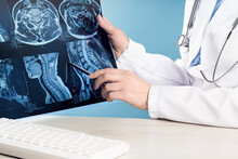 Doctors Hands Holding X-ray Or MRI Medical Imaging With A Head And Neck Condition. Spinal Cord, Blood Vessels And Brain. Neuro Medicine. Healthcare And Medicine. Injury. Bone Tissues. Banner