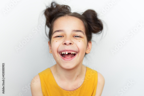 Closeup portrait of happy preschool little girl in yellow dress smiling broadly and showing empty space with growing first permanent molar isolated on grey studio background Fototapeta